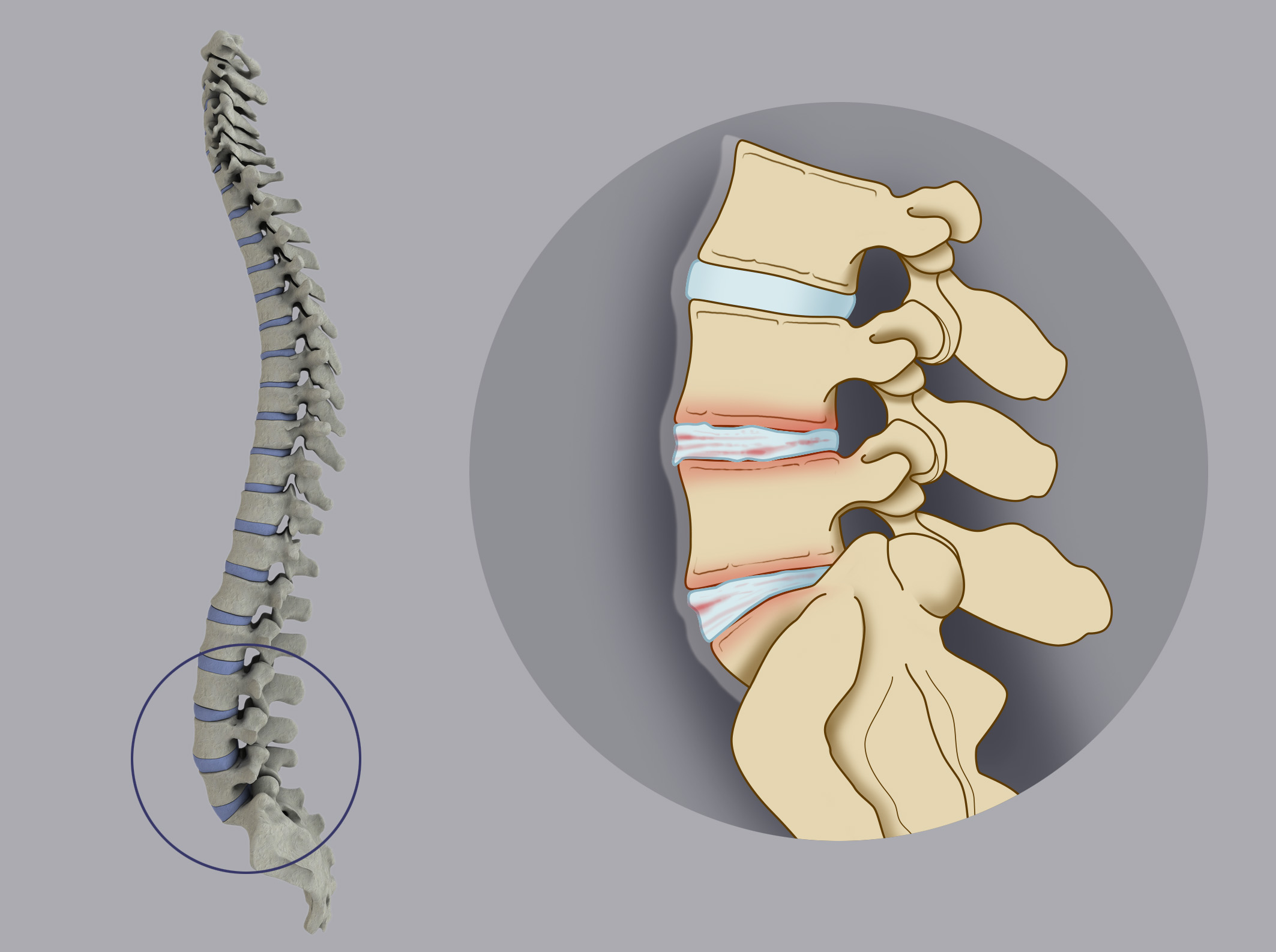 In the micro-instability the degenerated disc causes micro-movements of the vertebrae that slide  between each other, with consequent inflammation of the disc plate or of the vertebral joint and  onset of back pain, but the spine maintains its correct alignment.