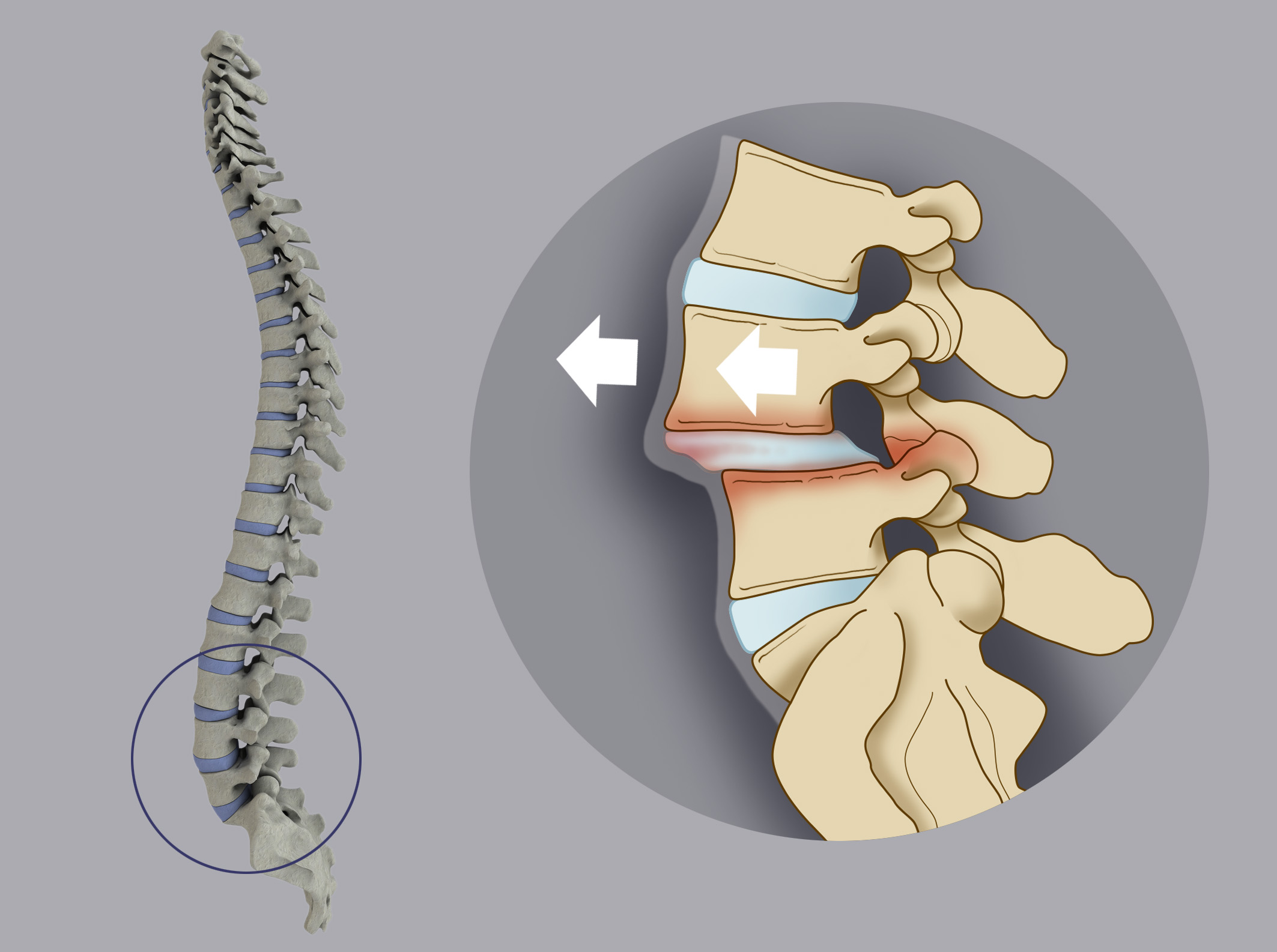In the macro-instability of the spine loses its normal alignment and the vertebrae slip one over the  other resulting in the condition defined as spondylolisthesis.