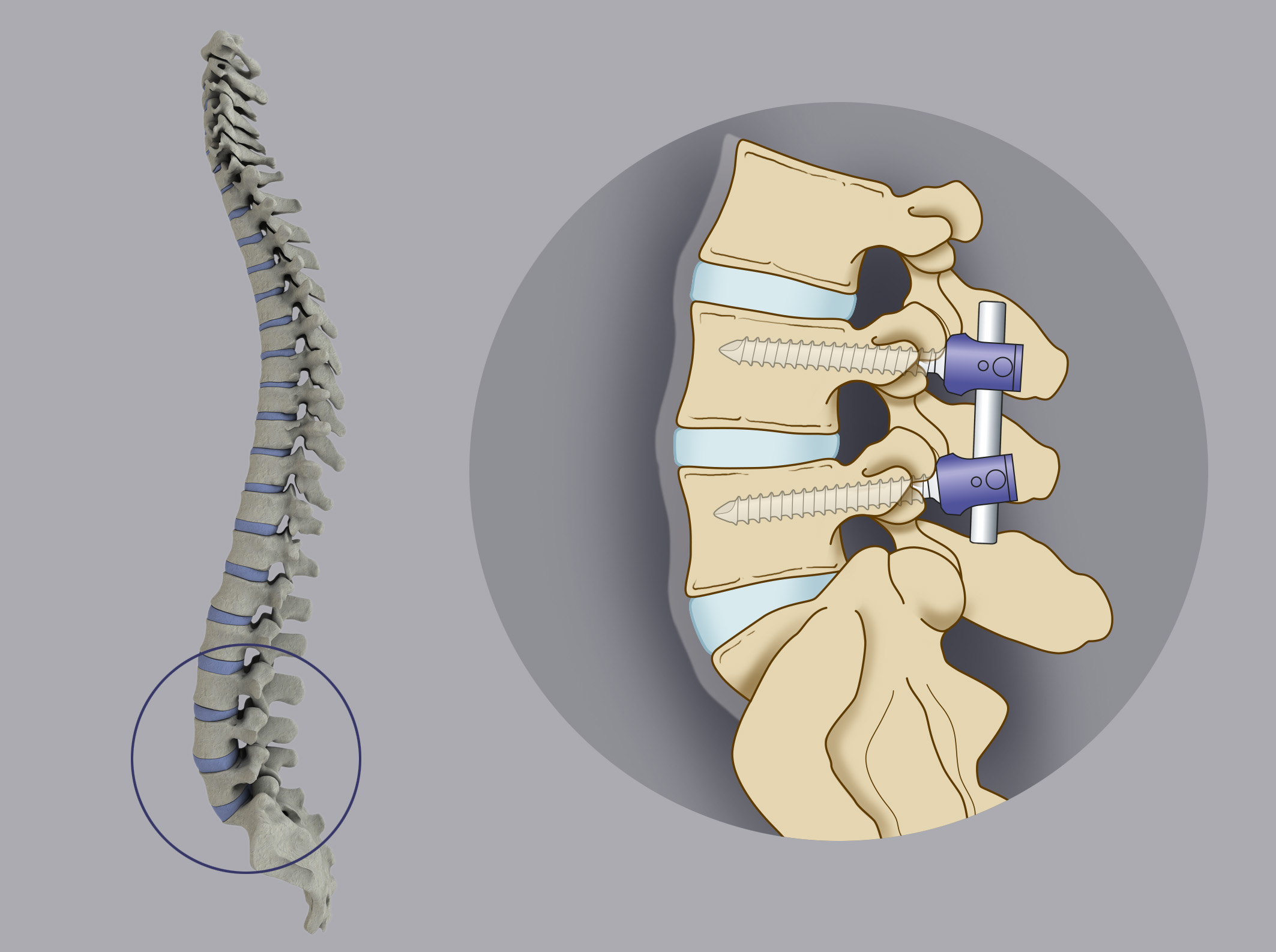 In case of severe instability, the surgical treatment consists in vertebral stabilization by means of  pedicolare screws, which are inserted into the vertebral body. The heads of the pedicular screws are  connected to each other by titanium bars.