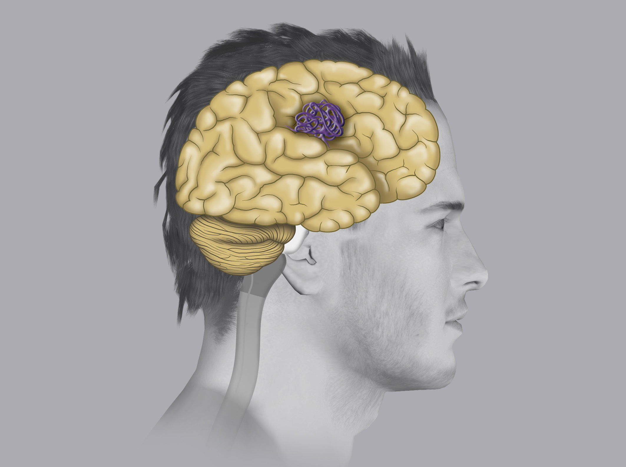 Gli angiomi cavernosi (detti anche cavernomi), sono malformazioni vascolari costituite da un agglomerato di vasi, con aspetto simile a delle more.