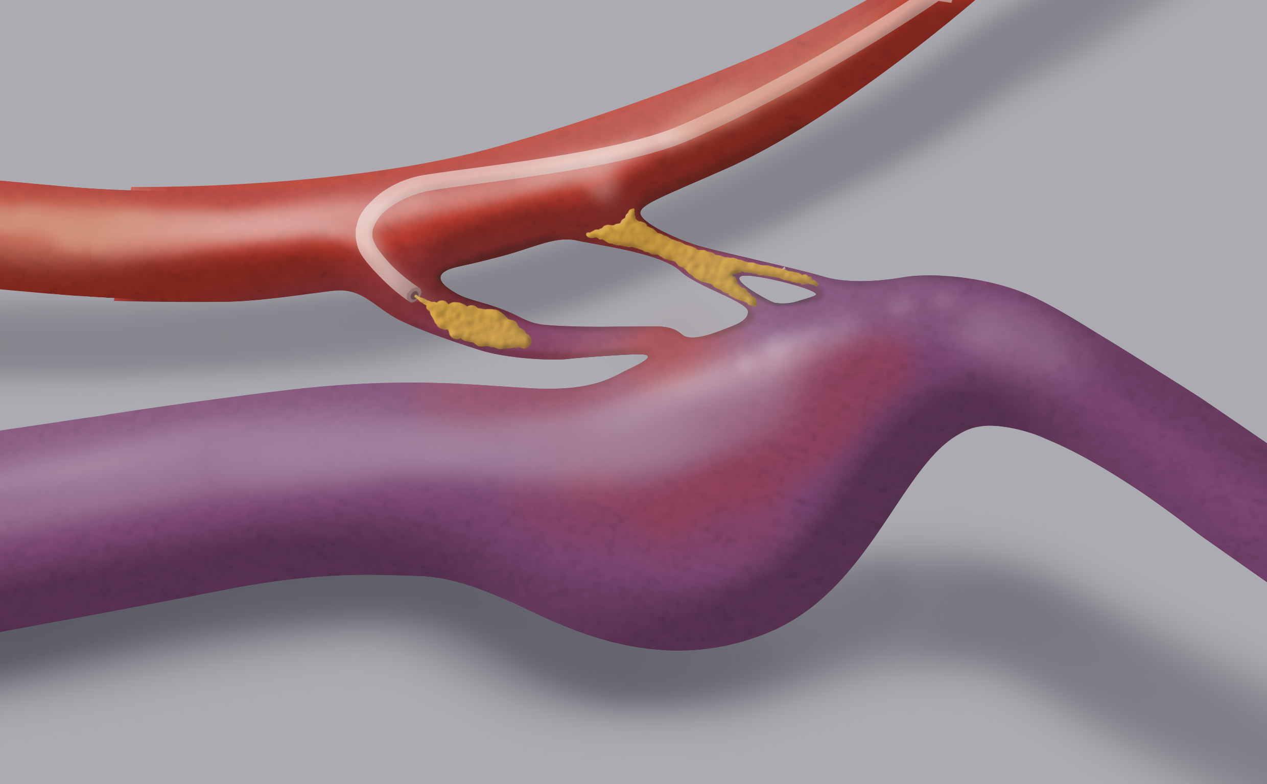 The endovascular treatment has the aim of reaching the point of the fistula with a microcatheter and  occluding it by injecting a glue.