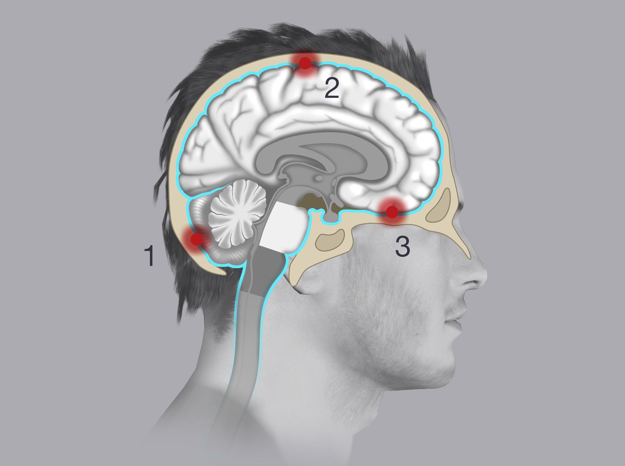 Depending on where the meningiomas are located, they are classified as one of the following:  posterior fossa meningiomas (1), convexity meningiomas (2), skull base meningiomas (3).