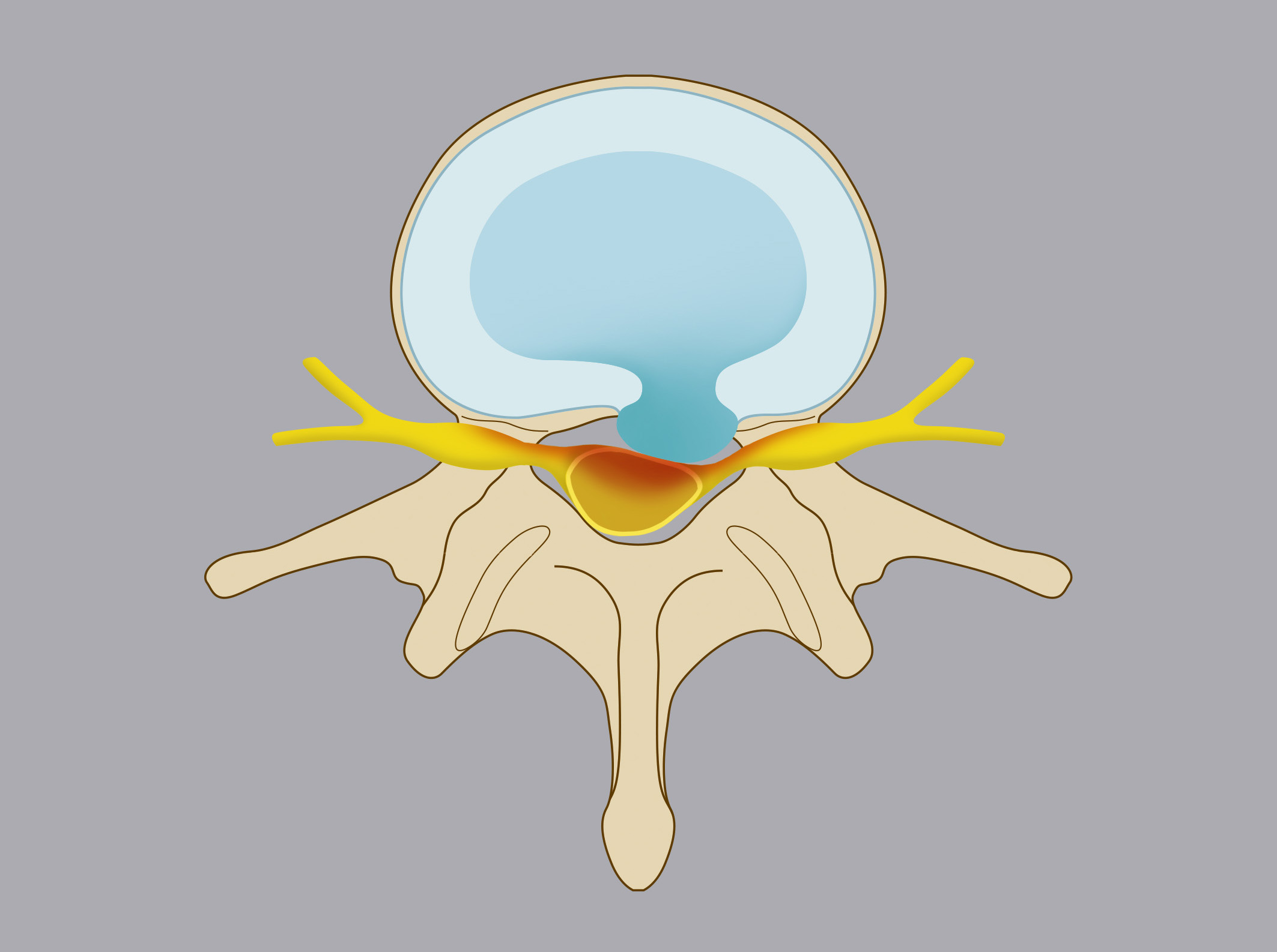 Intracanal herniation. The nucleus pulposus spills into the spinal canal, compressing nerve roots  and/or spinal cord.
