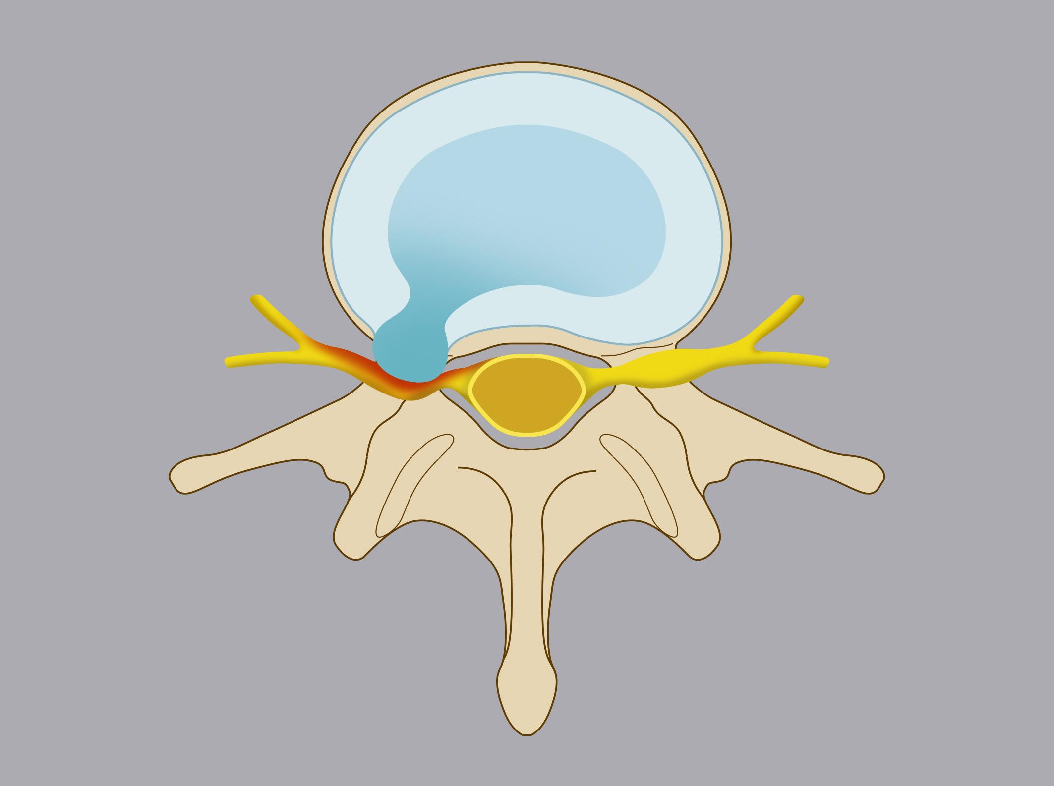 Ernia intraforaminale. Il nucleo polposo del disco migra all'interno del forame di coniugazione, entrando in contatto con la radice nervosa.