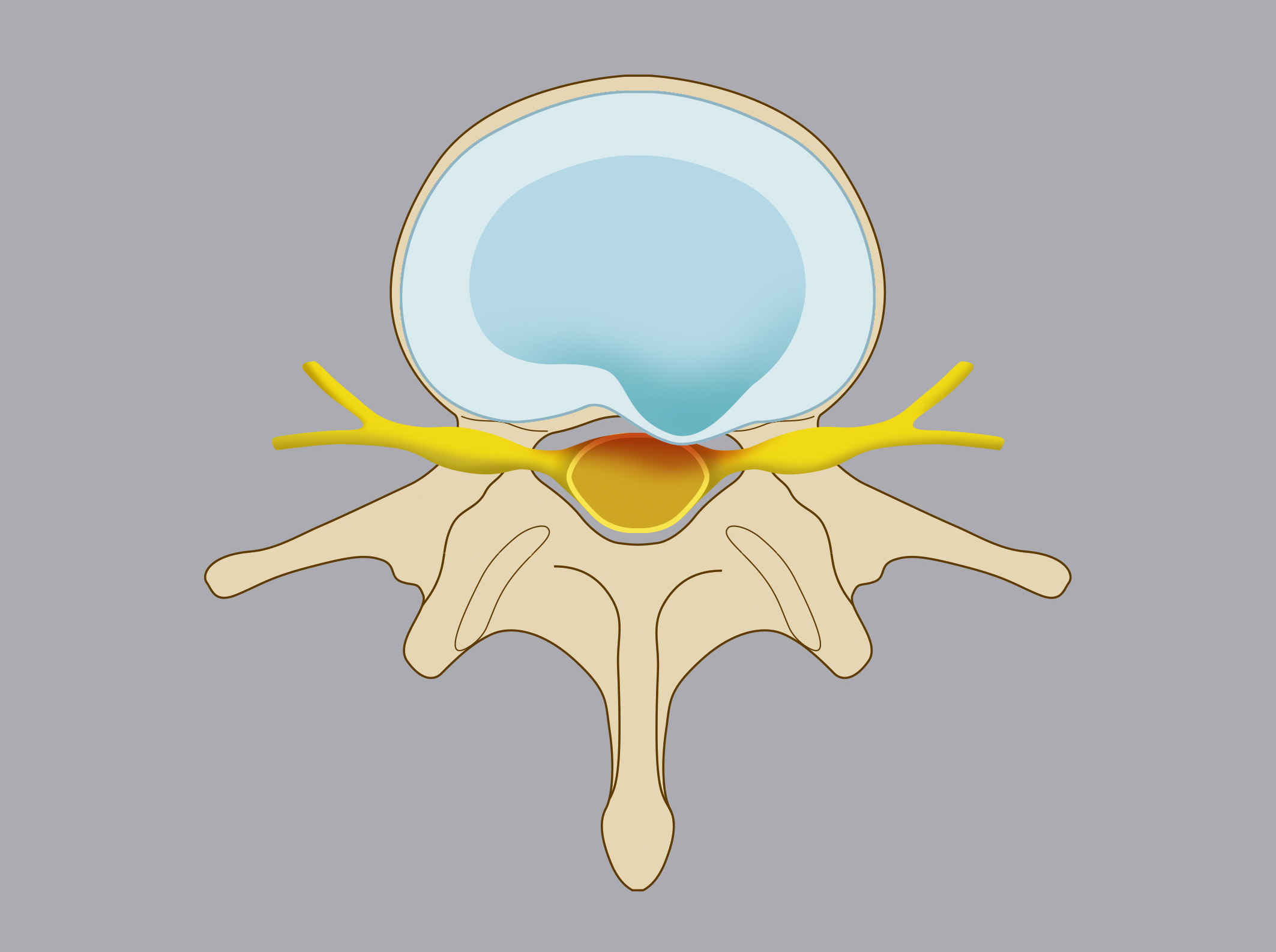 Disc protrusion. The annulus fibrosus goes through a deformation (but remains intact) caused  by the nucleus pulposus.