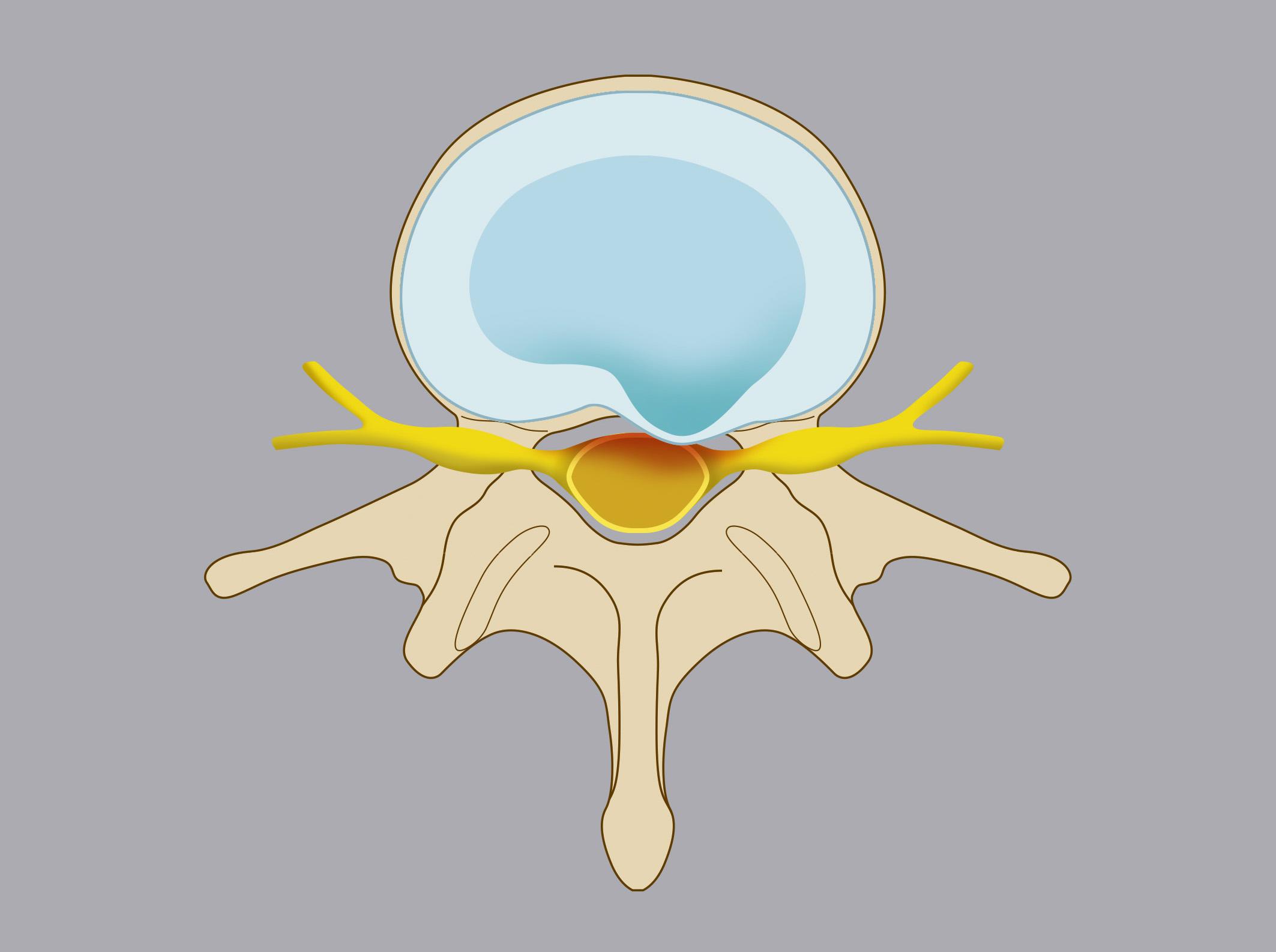 Protrusione discale. La componente esterna del disco – detta anulus fibroso – si deforma, contenendo tuttavia il nucleo polposo che rimane intatto.