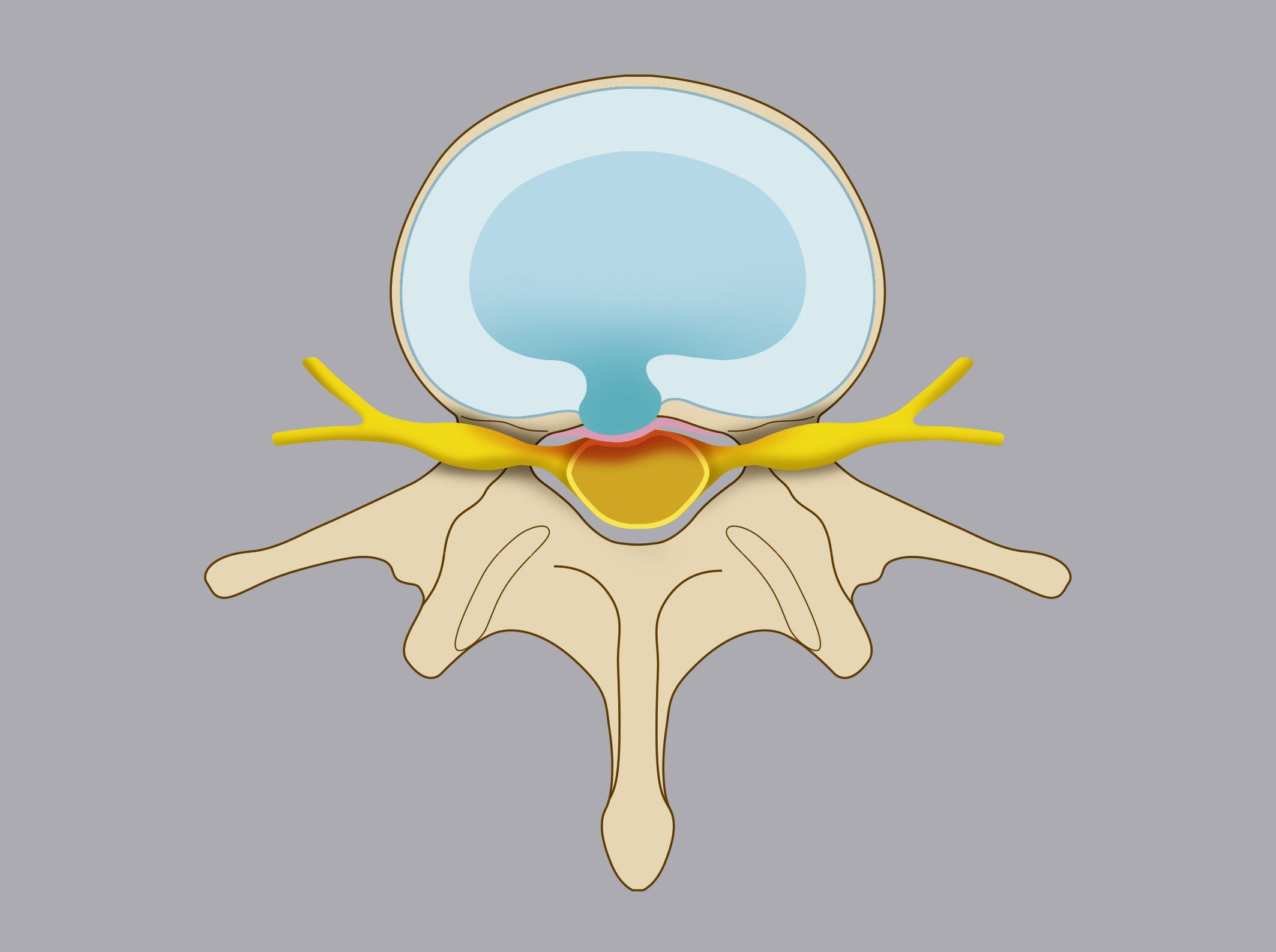 Ernia contenuta. Il nucleo polposo del disco aggetta nel canale vertebrale attraverso una breccia nell'anulus fibroso, ma è contenuto dal legamento longitudinale posteriore (del disegno rappresentato in colore rosa).