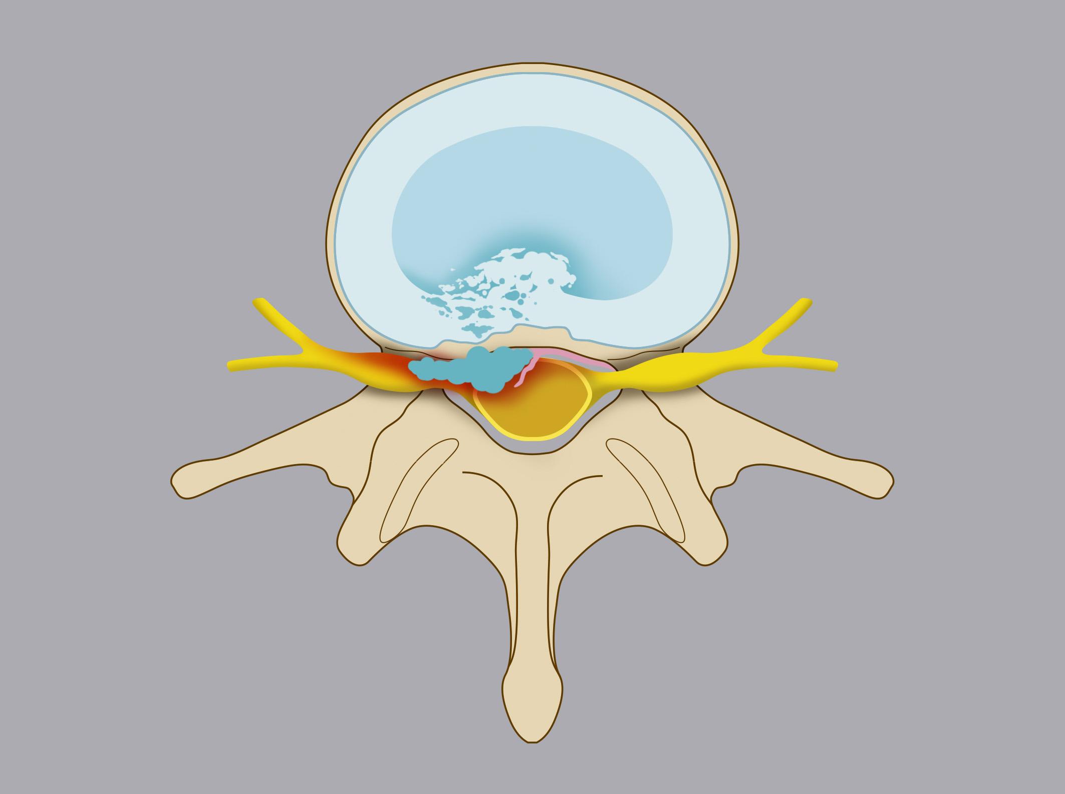 Ernia espulsa. Il nucleo polposo si distacca e fuoriesce dal disco intervertebrale, aggettando nel canale vertebrale. Nel disegno è evidente il disco erniato che disloca il sacco durale e/o la radice nervosa.