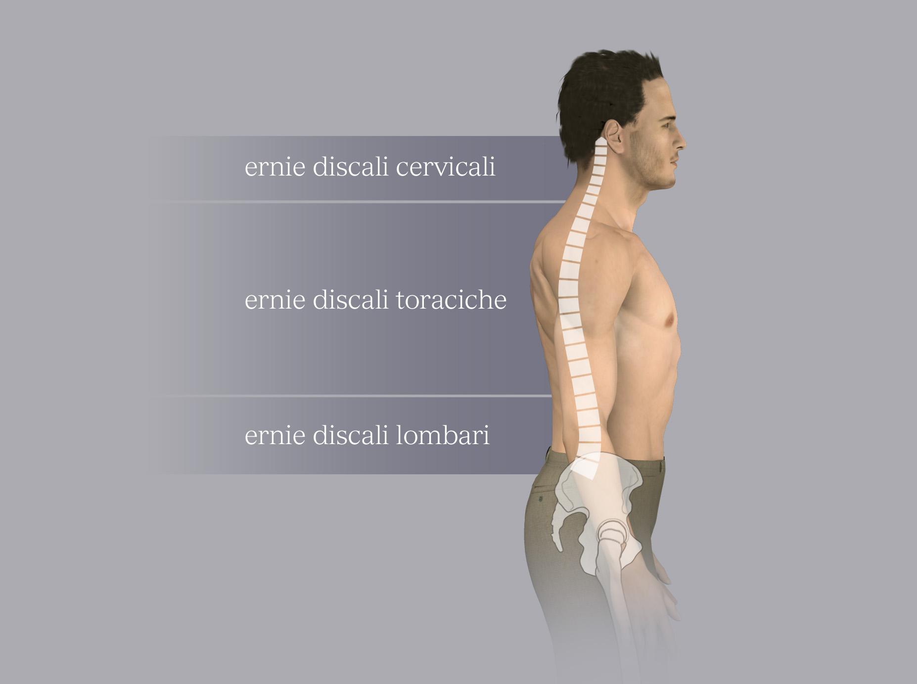 Classificazione delle ernie per tratto della colonna: cervicale, dorsale, lombare.