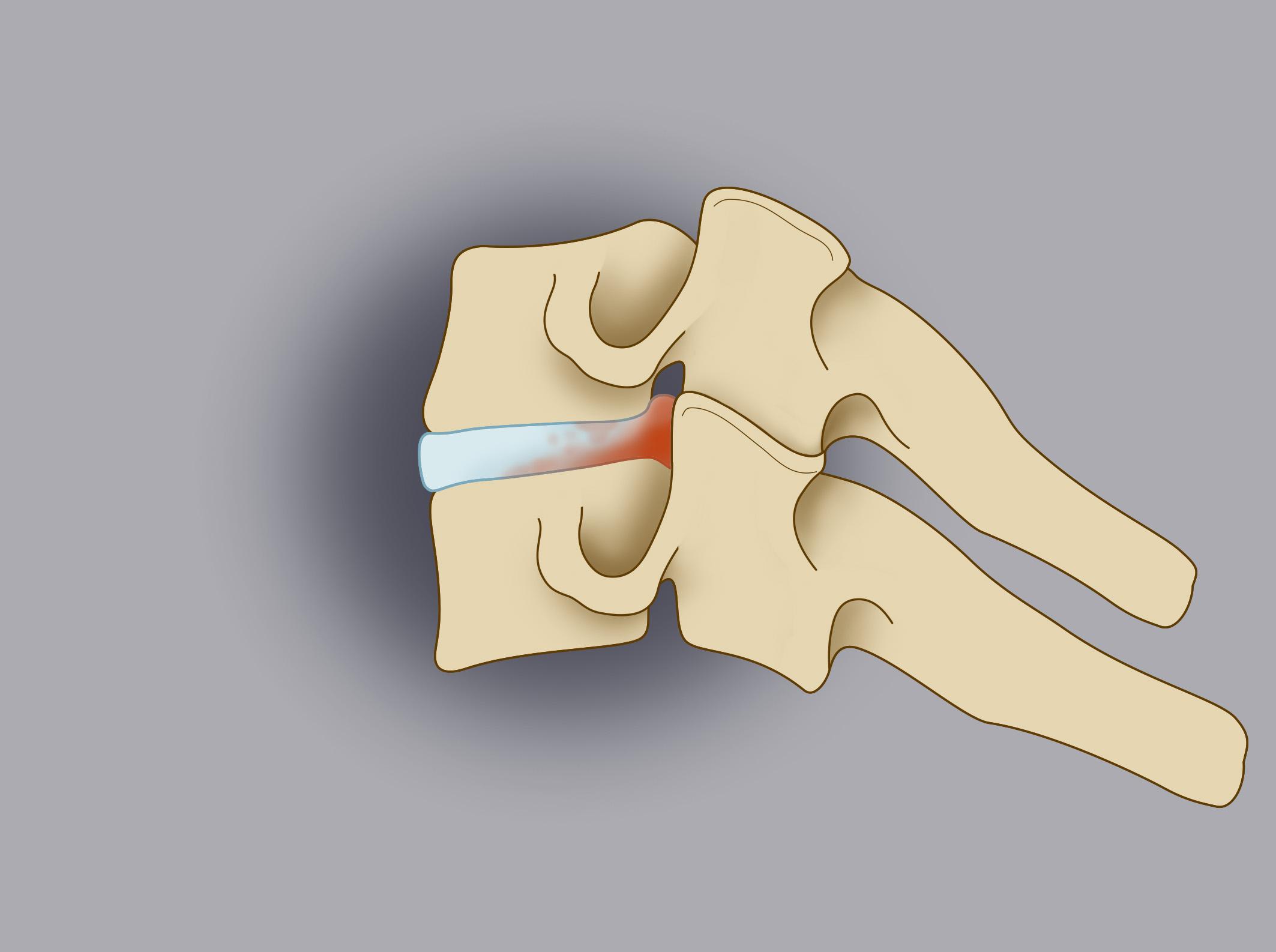 Trattamento chirurgico delle ernie cervicali 1/3. Nel disegno è evidenziato il disco cartilagineo patologico posto tra due vertebre cervicali.