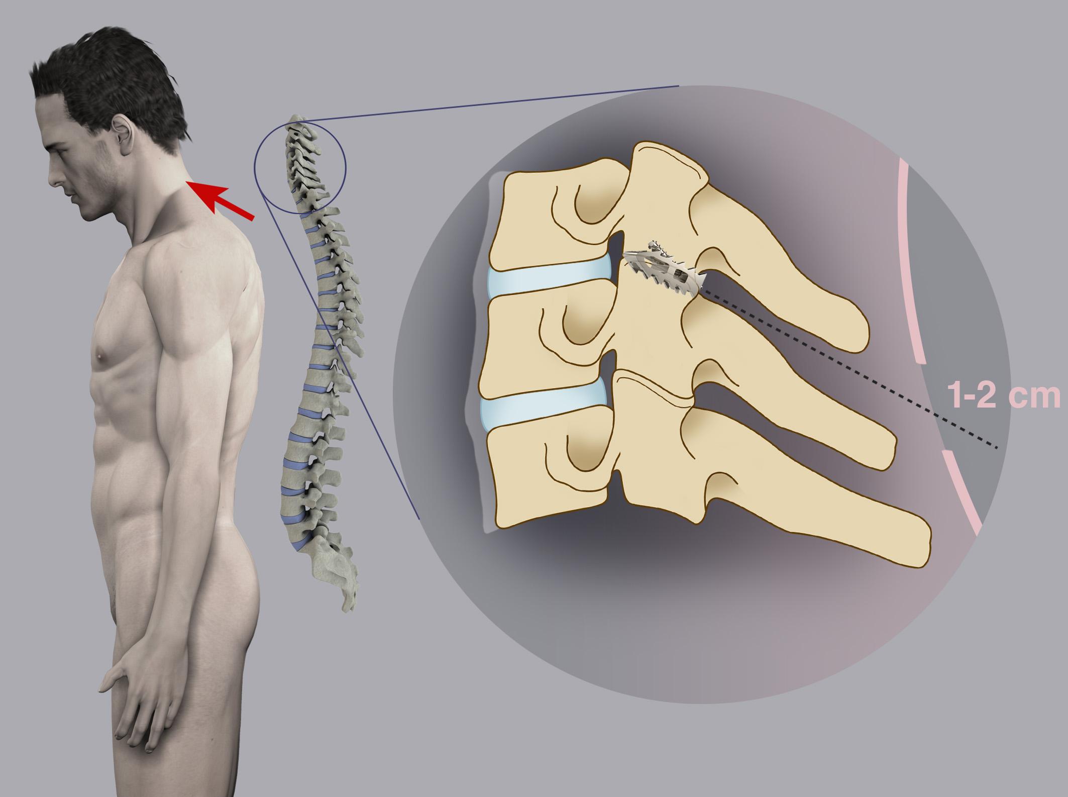 Benech Neurochirurgia - Stabilizzazione Cervicale DTrax