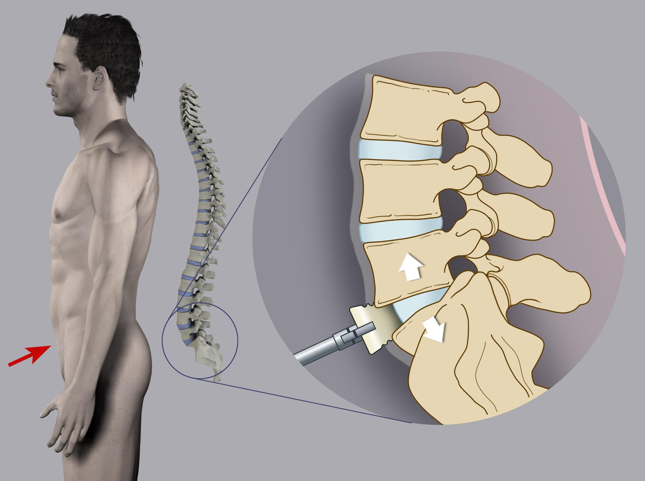 Benech Neurochirurgia - Stabilizzazione Lombare ALIF