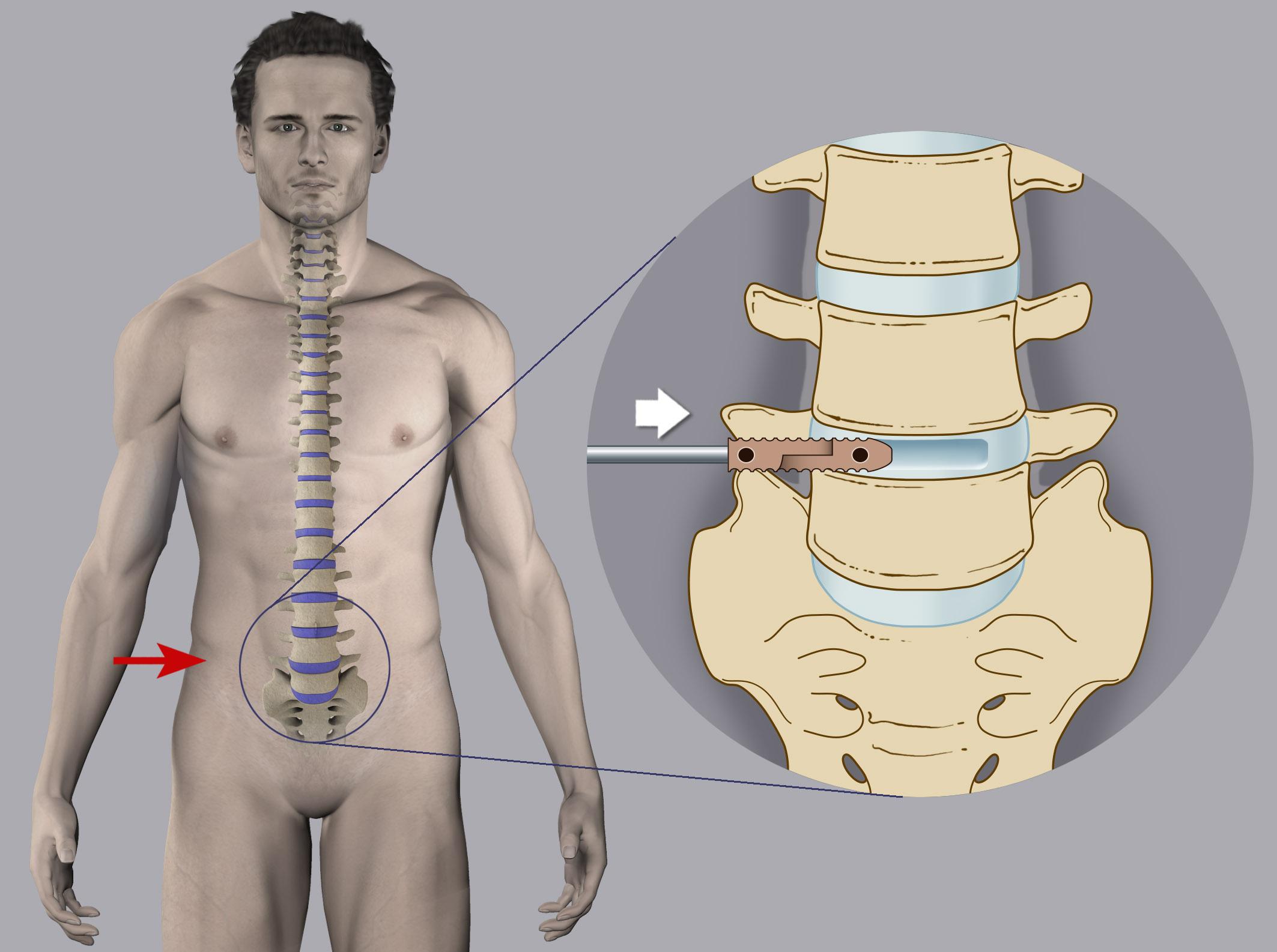 Benech Neurochirurgia - Stabilizzazione Lombare X-LIF