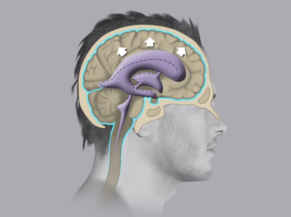 Si definisce idrocefalo la dilatazione dei ventricoli cerebrali, che avviene in seguito all'accumulo di liquor al proprio interno.
