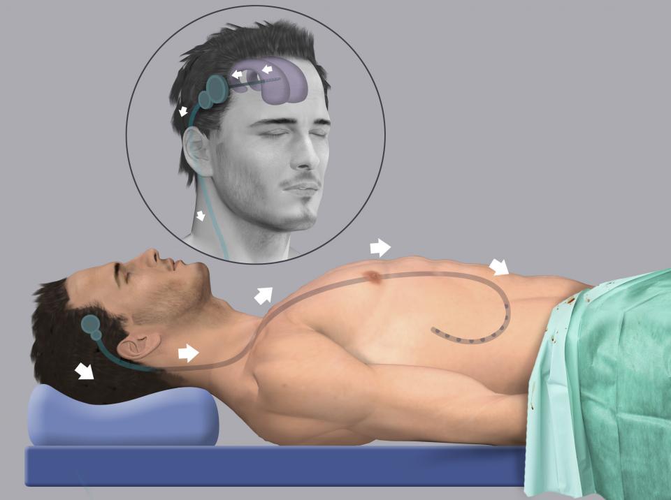 L'idrocefalo normoteso viene trattato mediante posizionamento del sistema di derivazione ventricolo-peritoneale. Consiste nell'introduzione di un catetere deputato a convogliare il liquor in eccesso dalla testa all'addome, dove verrà riassorbito.