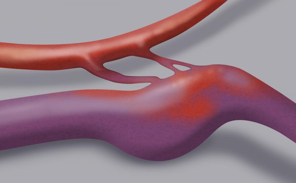 La fistola artero-venosa è una malformazione vascolare costituita da un'anomala comunicazione tra un'arteria e una vena: tale passaggio è diretto, senza interposizione di capillari. Il disegno mostra chiaramente la forte dilatazione del vaso venoso.