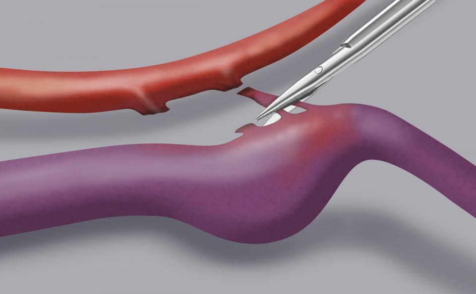 Il trattamento microchirugico consiste nella chiusura diretta del passaggio anomalo, effettuando un taglio con una microforbice dopo opportuna coagulazione.