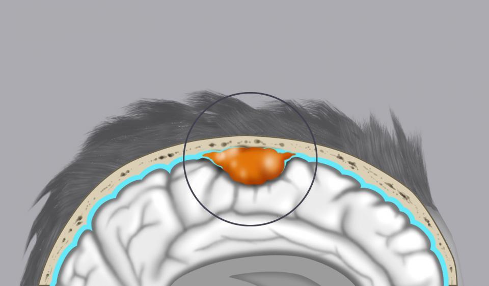 Il disegno mostra un meningioma della convessità: il tumore origina dalle meningi che rivestono l'encefalo.