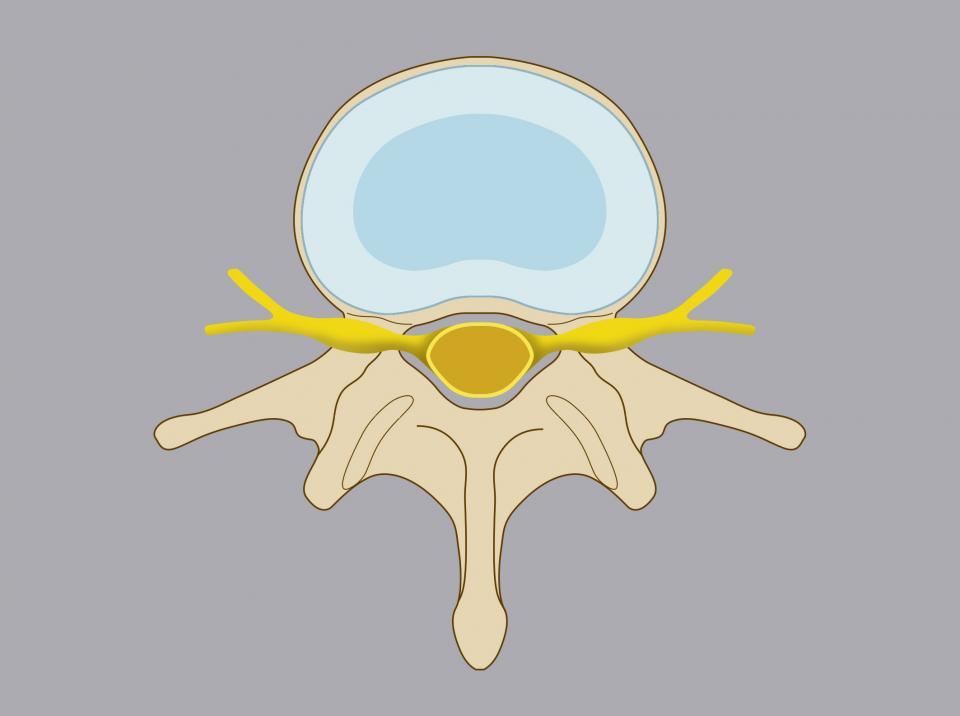 Anatomia della vertebra. Come si evince dal disegno, in una situazione non patologica, il disco cartilagineo mantiene la propria forma e la propria posizione anatomica, senza interferire con i nervi e con il midollo spinale.