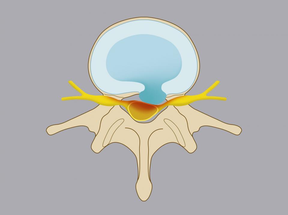 Ernia intracanalare. Il nucleo polposo del disco aggetta all'interno del canale vertebrale, entrando in conflitto con la radice nervosa e/o il sacco durale.