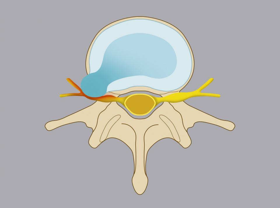 Ernia extraforaminale. Il nucleo polposo del disco migra lateralmente rispetto il forame di coniugazione.