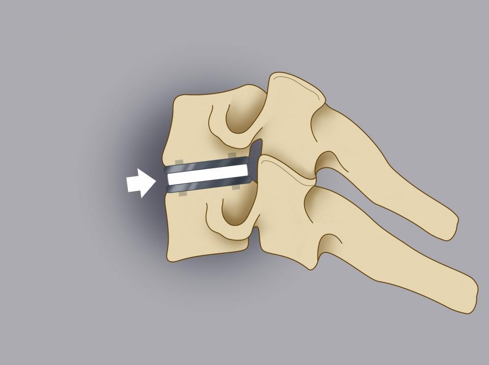 Trattamento chirurgico delle ernie cervicali 3/3. Il disco intervetrabrale viene sostituito con una protesi in titanio o in peek delle medesime dimensioni.