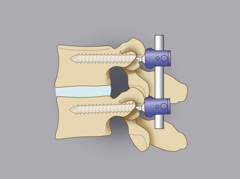 Trattamento chirurgico delle ernie lombari. In alcuni casi, in associazione alla rimozione del frammento erniario, è utile procedere a una stabilizzazione vertebrale. Il disegno mostra l'utilizzo di viti peduncolari.